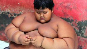 Arya Permana, l'enfant le plus gros du monde en 2016
