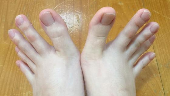Cette fille a les doigts de pieds trop long !