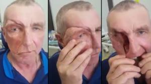 Cet homme a une prothèse incroyable sur le visage