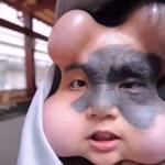 Des chirurgiens lui ont implanté 4 ballons afin d'effacer sa tache de naissance