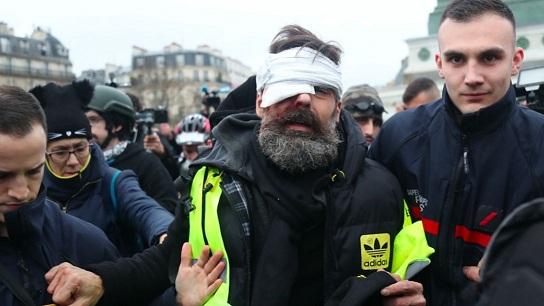 Jérôme Rodrigues gravement blessé à l'œil pendant un live Facebook (Gilets Jaunes Acte 11)