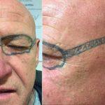 Ce gallois s'est réveillé après une soirée trop arrosée avec des lunettes tatouées sur le visage