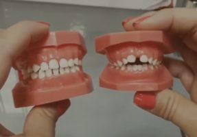 Voici comment la tétine affecte les dents des bébés